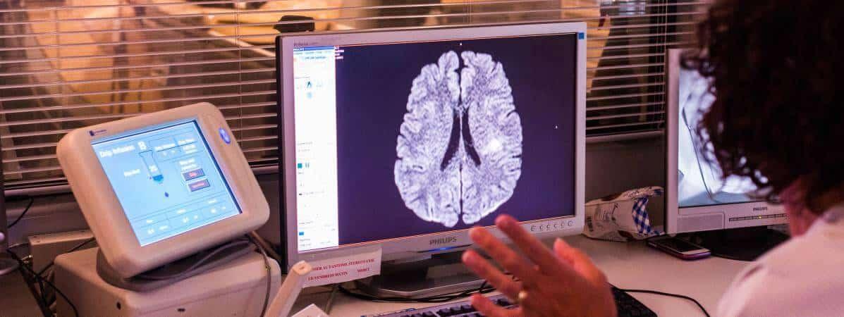 scanner cerebral chu hypnose